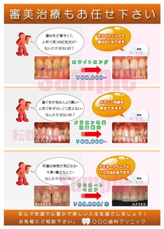 画像1: 歯科審美治療3症例ポスター (1)