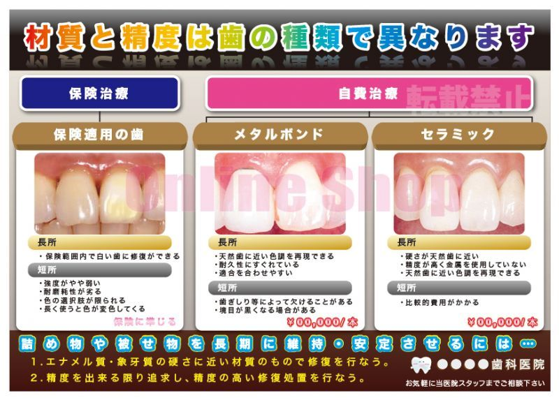 画像1: 歯科の補綴物(審美)比較ポスター (1)