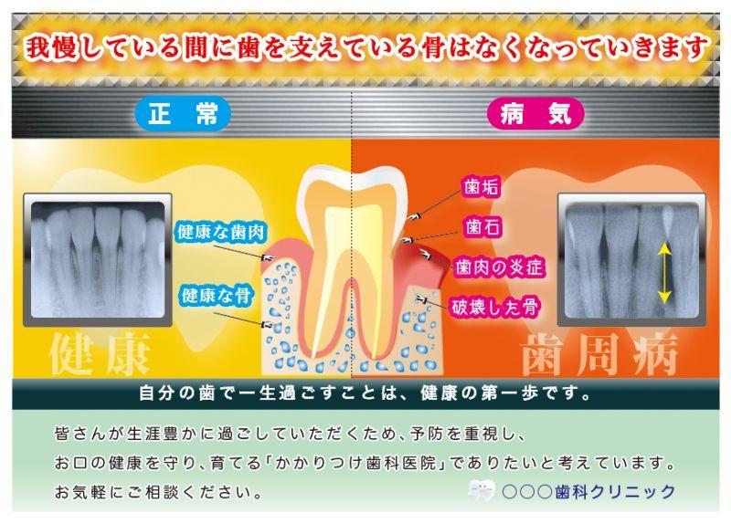 画像1: 歯周病ポスター(歯槽骨編) (1)