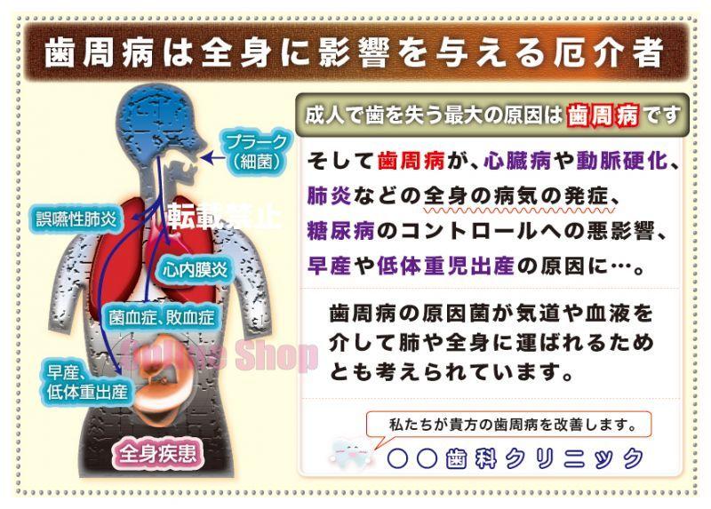 画像1: 全身と歯周病の関係ポスター (1)