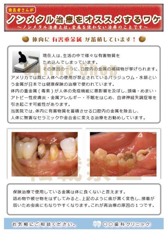画像1: ノンメタル治療推奨ポスター (1)