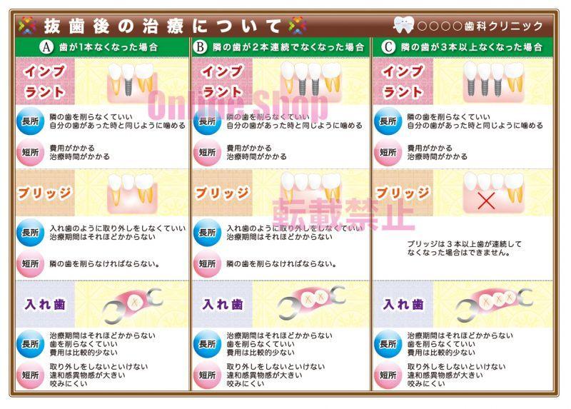 画像1: 抜歯後の治療(補綴物)選択ポスターB (1)